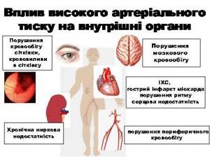 Артеріальна гіпертензія: профілактика і попередження ускладнень