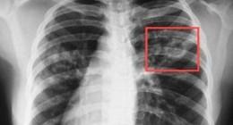 Як вберегтись від туберкульозу